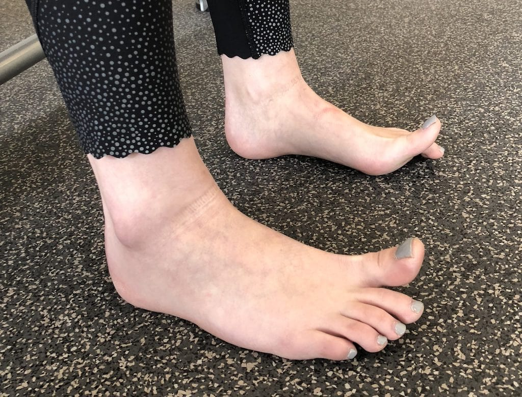 Toe Extension Tips First Hike Alaia Physio